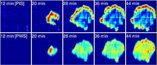 Novel microscopy technique developed to analyze cellular focal adhesion dynamics
