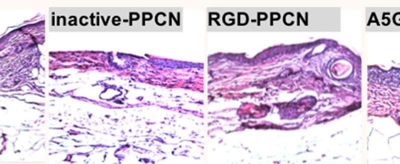 Regenerative bandage accelerates healing in diabetic wounds