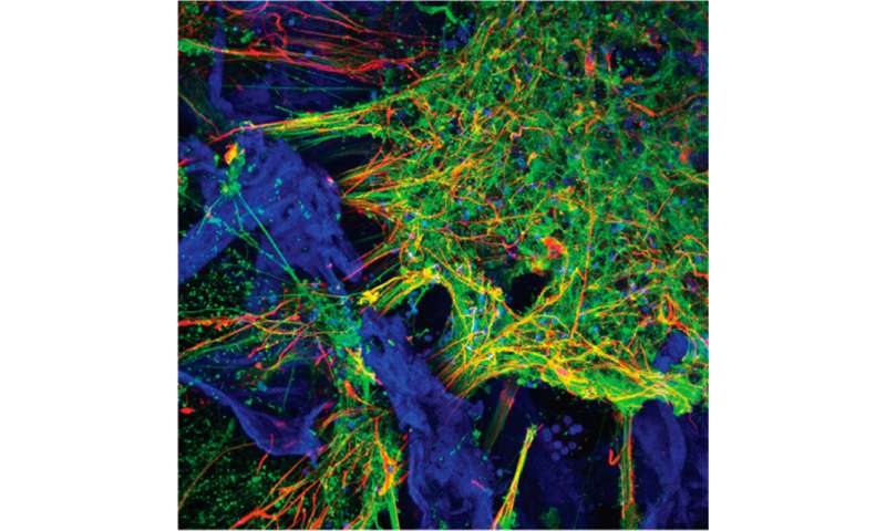 Scientists grow functioning human neural networks in 3D from stem cells