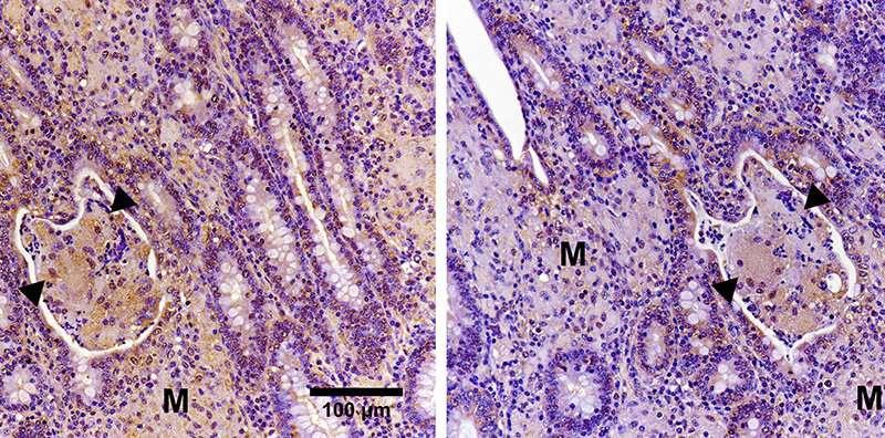 Unraveling the immunopathogenesis of Johne's disease