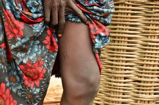 World moves closer to eradicating Guinea worm disease