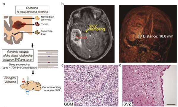 A breakthrough for understanding glioblastoma—origin cells for deadly brain tumors identified