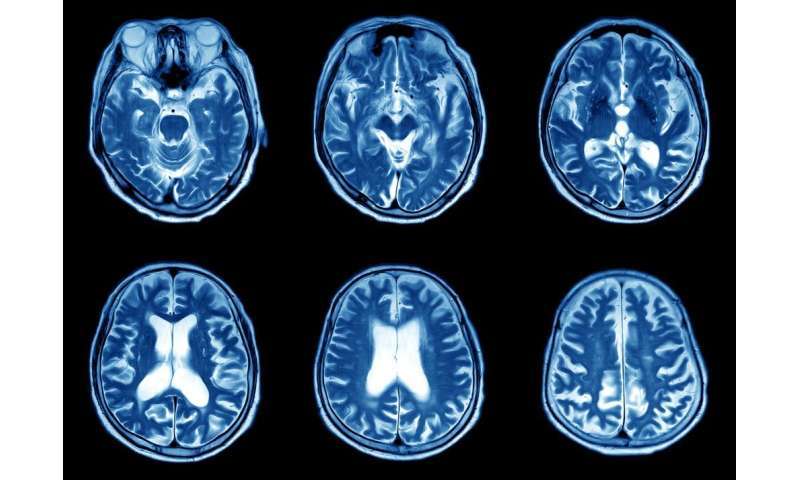 Having a scan? Here's how the different types work and what they can find