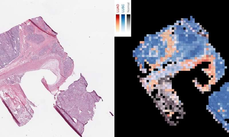 Artificial intelligence can determine lung cancer type