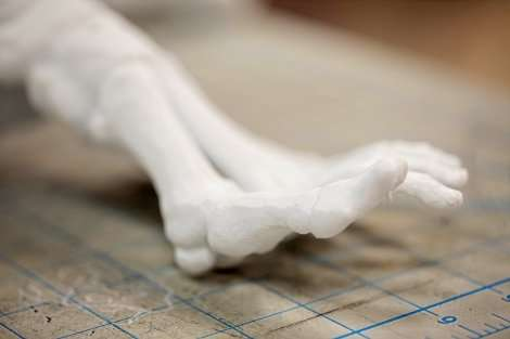 3-D-printed bones are helping doctors prepare for surgeries