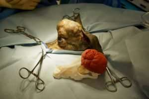 Additive design signals revolution in reconstructive surgery