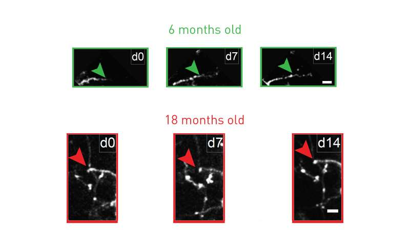 Antidepressant restores youthful flexibility to aging inhibitory neurons in mice