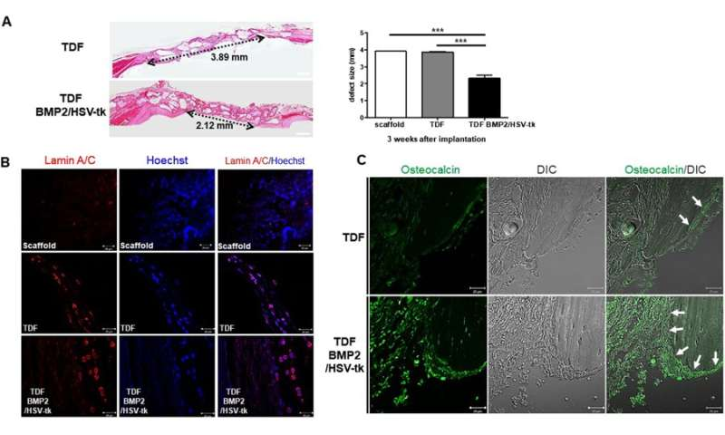 **Engineering teratoma-derived fibroblasts to enhance osteogenesis