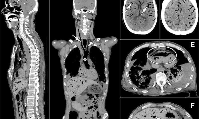 Minimally invasive autopsy improves postmortem diagnoses