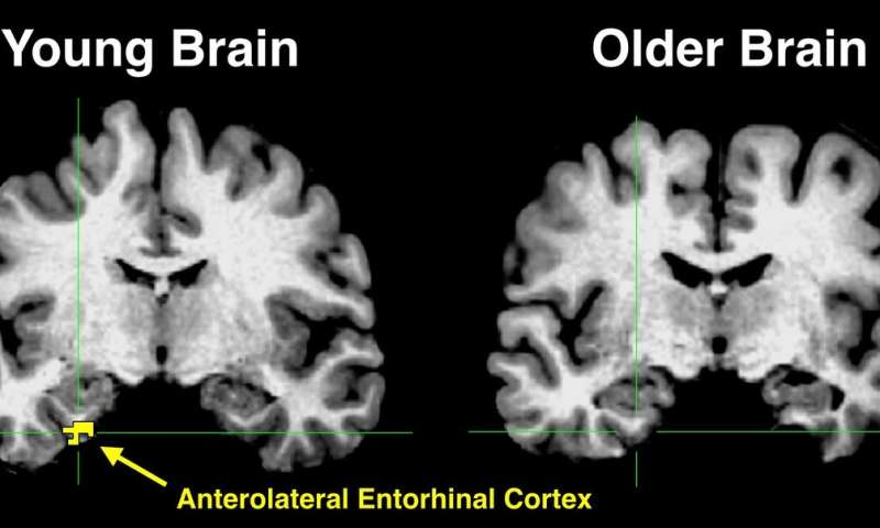 High-resolution brain imaging provides clues about memory loss in older adults