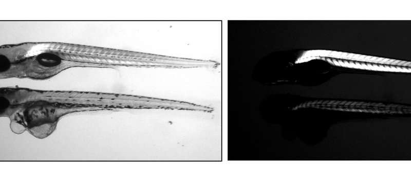 Uncovering the genetics of skeletal muscle growth and regeneration
