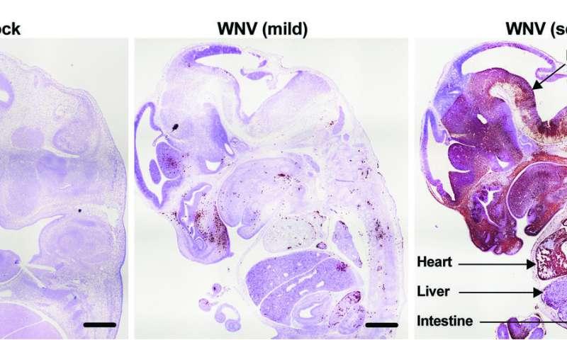 Like Zika, West Nile virus causes fetal brain damage, death in mice