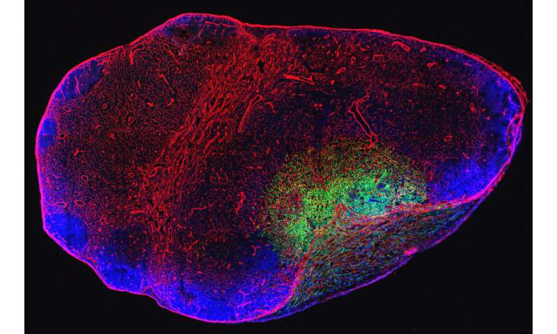 Metastatic lymph nodes can be the source of distant metastases in mouse models of cancer
