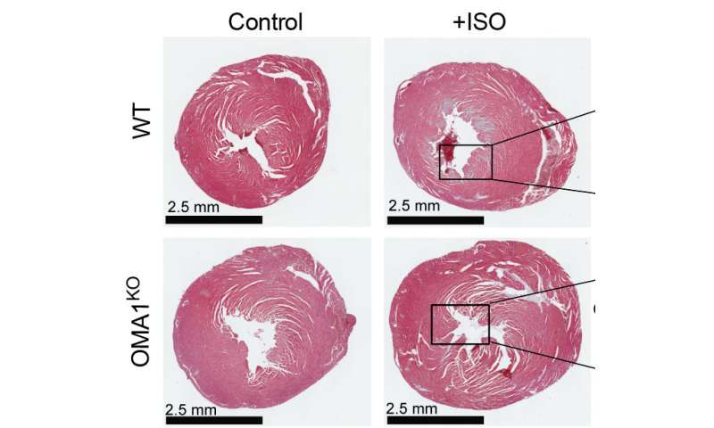 Scientists identify a promising target for the treatment of heart failure