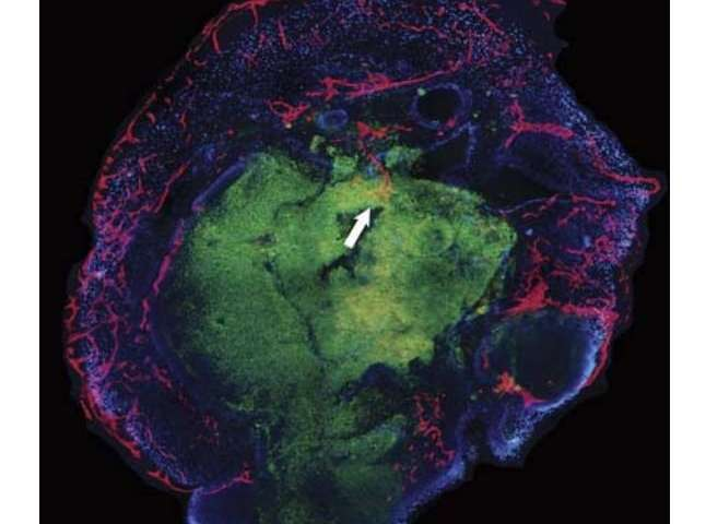 Researchers grow capillaries with a neural organoid