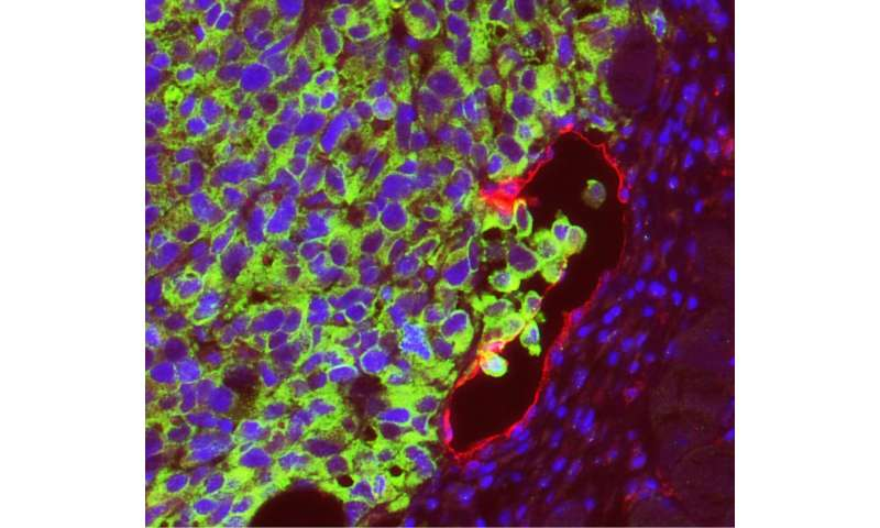 Lymphatic endothelial cells promote melanoma to spread