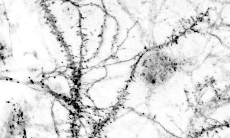 New approach for treating neuropathic pain