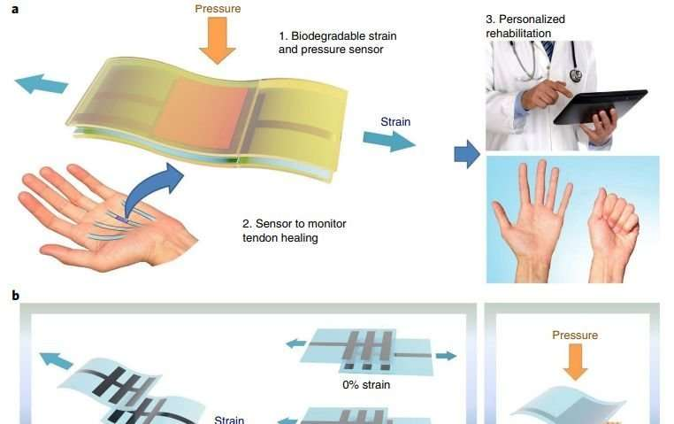 Implantable sensor decomposes when its usefulness ends