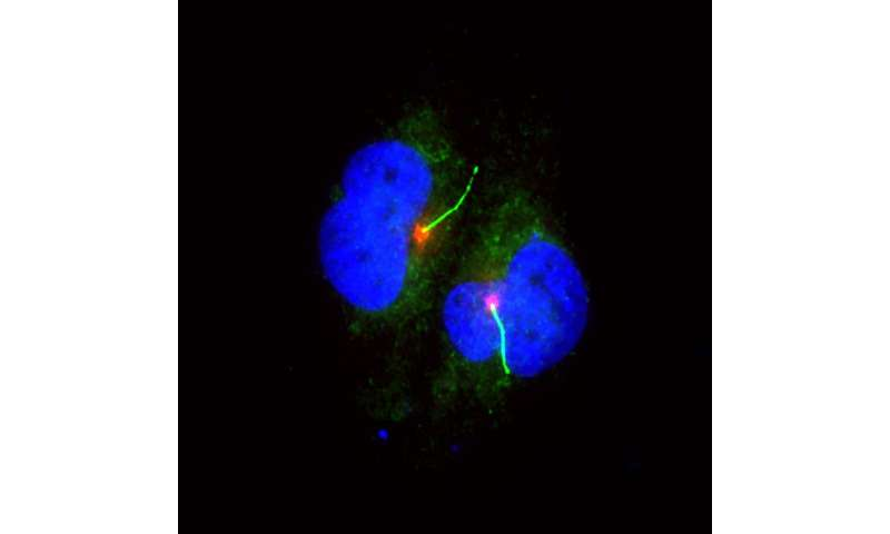 Loss of cilia leads to melanoma