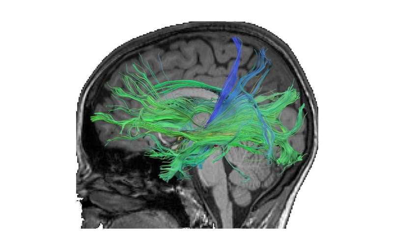 Better connectivity of brain regions with training