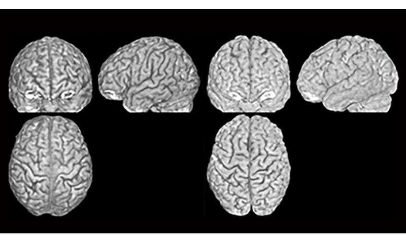 Every person has a unique brain anatomy
