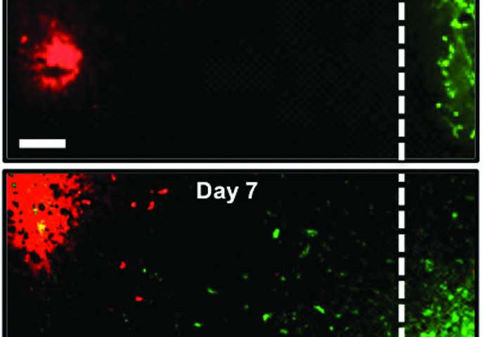 Engineered cancer cells can fight primary and metastatic cancer