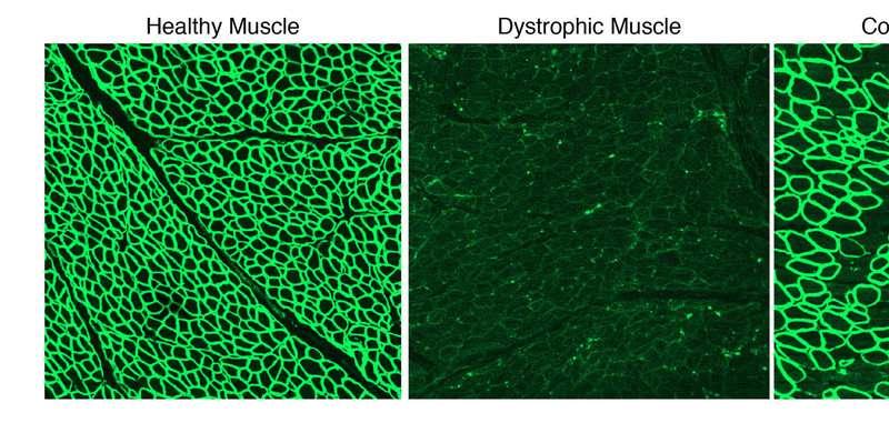 CRISPR halts Duchenne muscular dystrophy progression in dogs