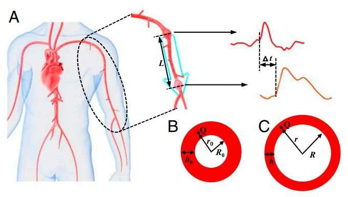 New model suggests cuffless, non-invasive blood pressure monitoring possible using pulse waves