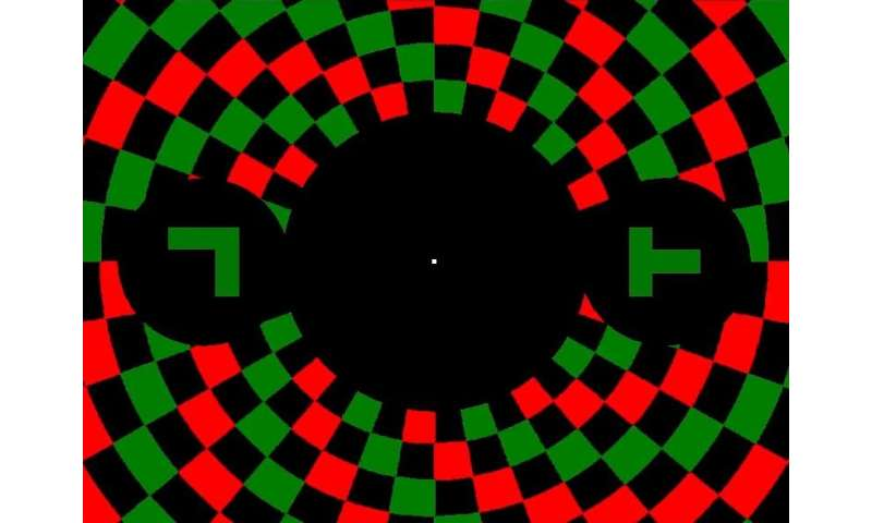 Hallucinations associated with brain hyperactivity in people with macular degeneration