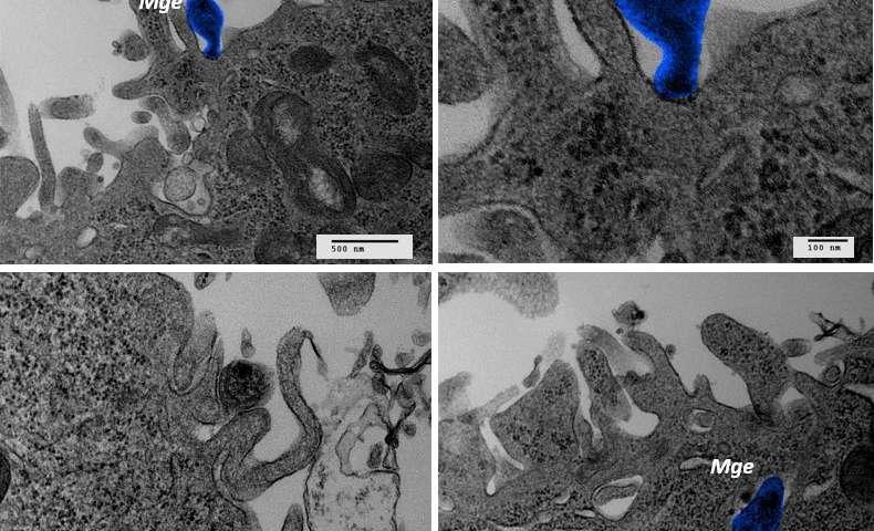 Mycoplasma genitalium's cell adhesion mechanism revealed