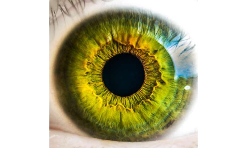 Calcifications in the eye increase risk for progression to advanced AMD by more than six times
