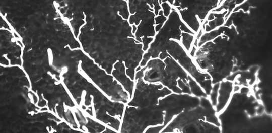 Research shows first land plants were parasitised by microbes
