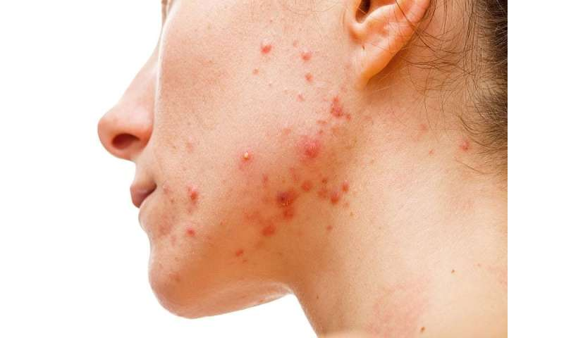 Clinical trials support efficacy of tretinoin lotion for tx of acne
