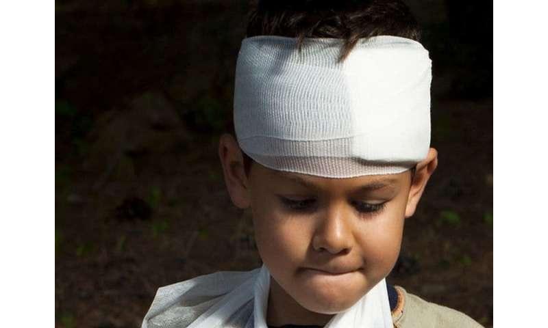 Prevalence of TBI 2.5 percent among U.S. children