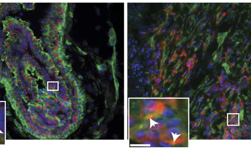 Breast cancer growth signals are enhanced by a protein outside cells