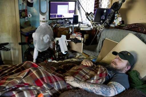 Patients shocked, burned by device touted to treat pain