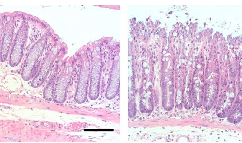 Scientists find molecular link between Vitamin A derivative and mouse intestinal health