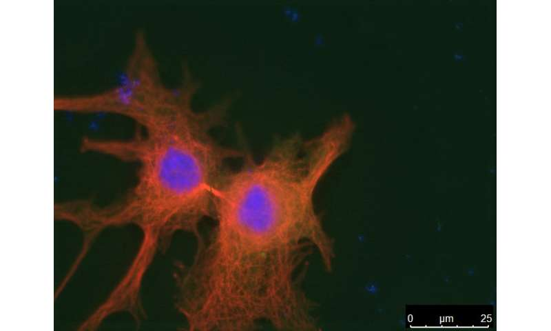 Discovery of a new tumor suppressor previously thought to be an oncogene