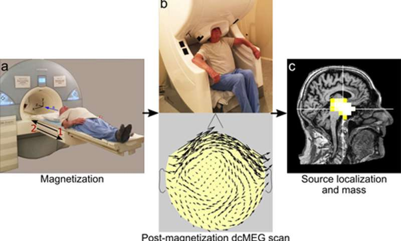 Advanced imaging technology measures magnetite levels in the living brain