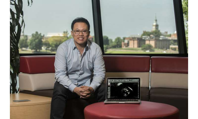 Advanced MRI can detect placental perfusion abnormalities in pregnancies complicated by fetal CHD