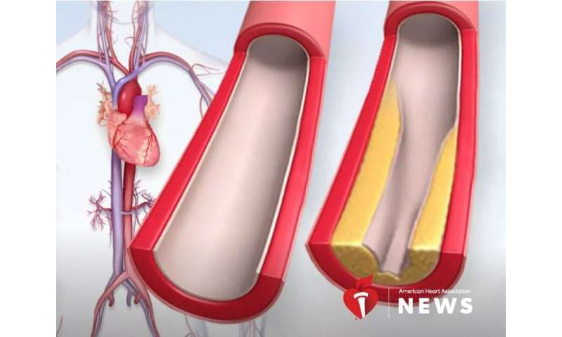 AHA: 3 things to know about cholesterol