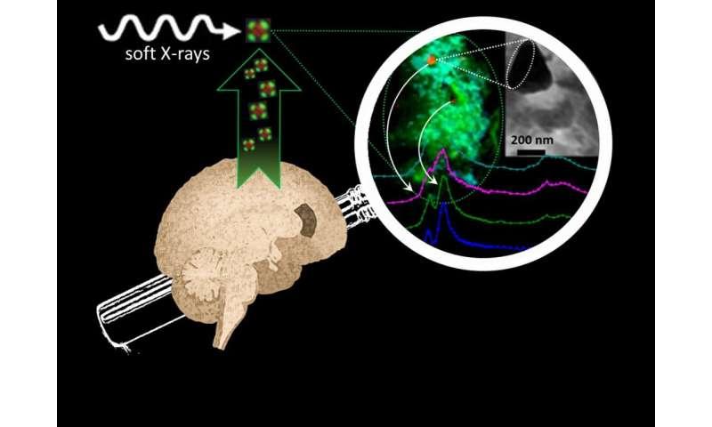 Alzheimer's breakthrough: Brain metals that may drive disease progression revealed