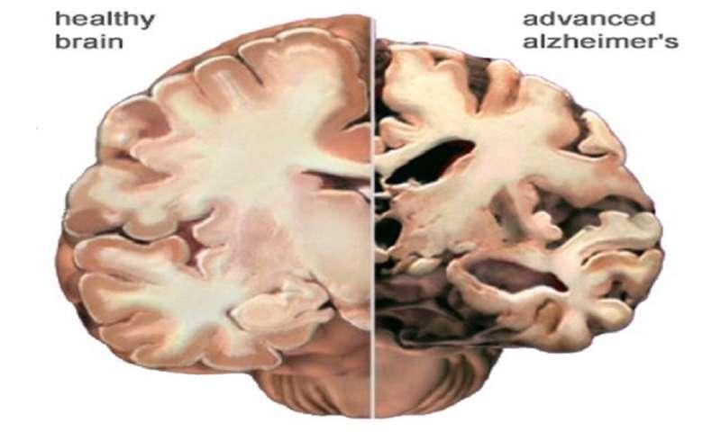 Alzheimer's vs normal brain