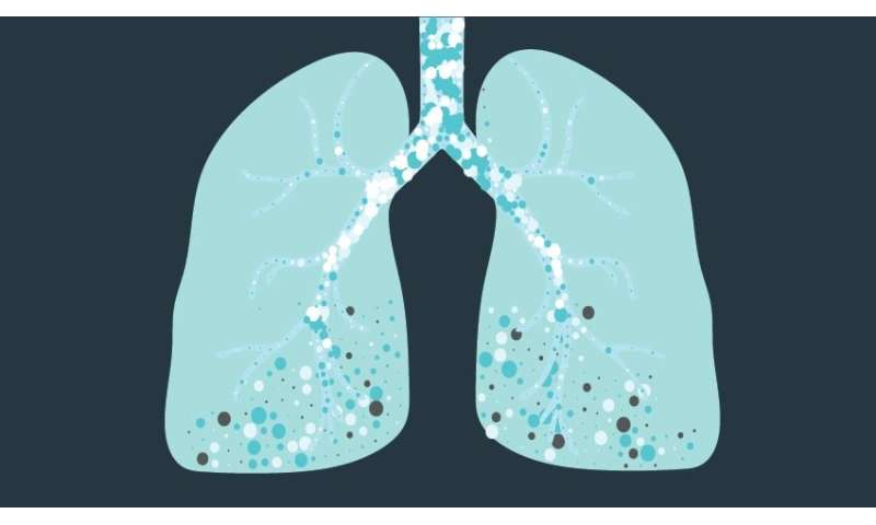Blocking the molecular source of idiopathic pulmonary fibrosis