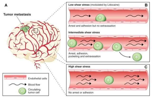 Blood flow is a major influence on tumor cell metastasis