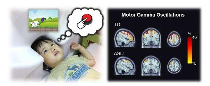 Brainwave activity reveals potential biomarker for autism in children