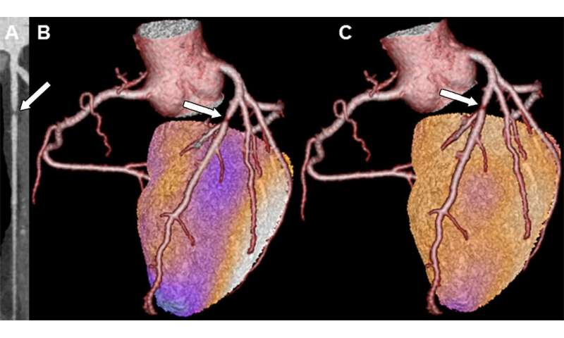 Cardiac hybrid imaging an effective tool for predicting heart attacks