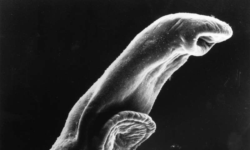 Control HIV by treating schistosomiasis, new study suggests
