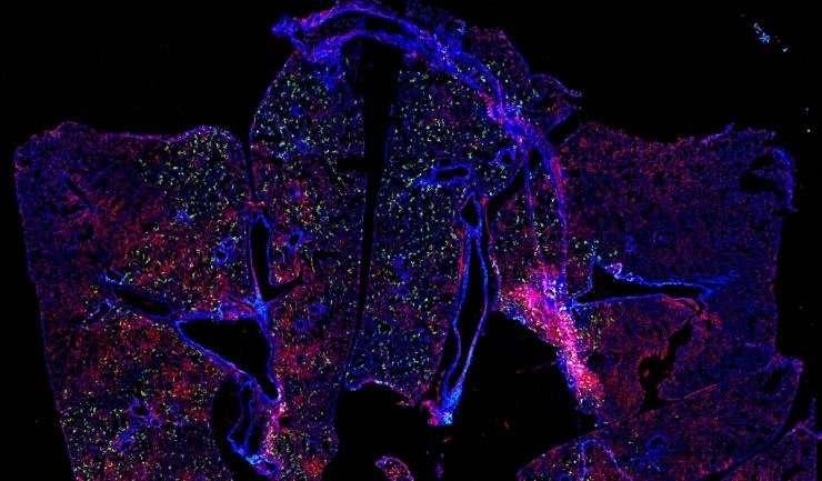 Delivering antibodies via mRNA could prevent RSV infection