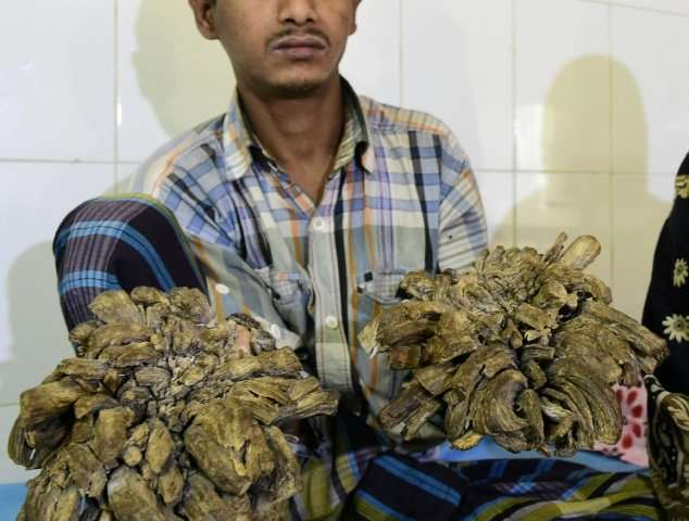 Dhaka doctors had surgically removed more than five kilos (11 pounds) of growths from Bajandar's hands and feet